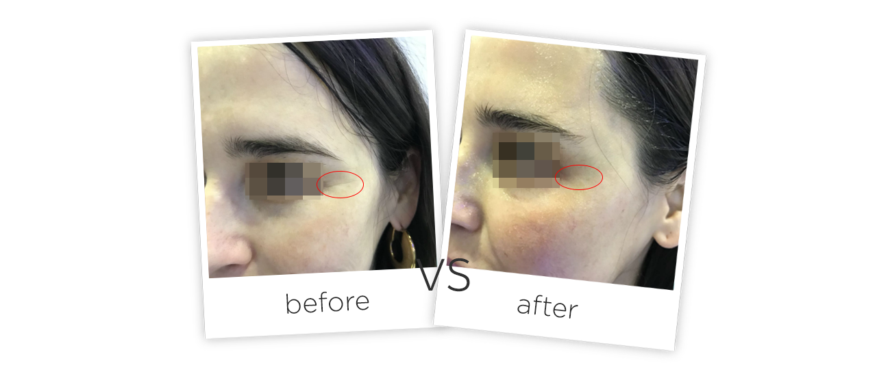 Treatment  /  Wrinkle Removal & Skin Tighten Before&After