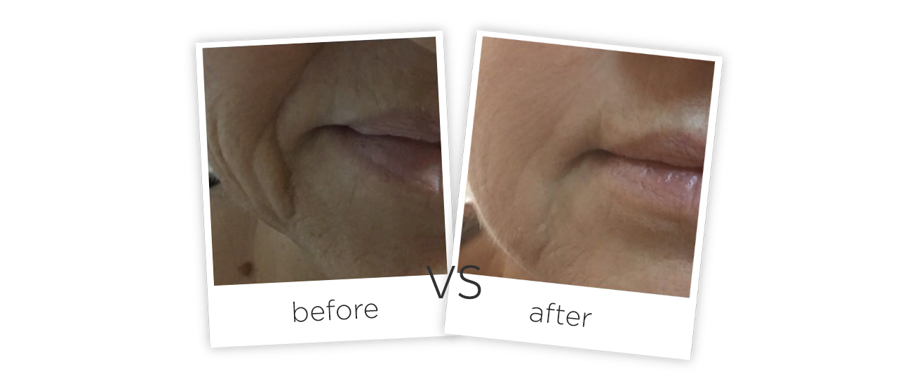 Treatment  /  Wrinkle Removal & Skin Tighten Treatment results