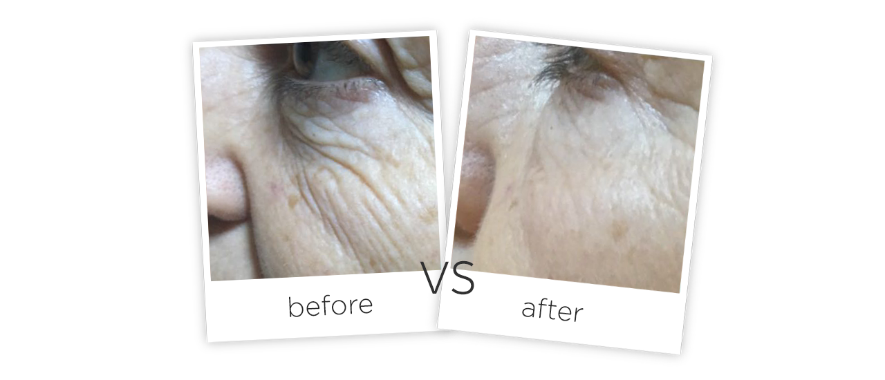 Treatment  /  Wrinkle Removal & Skin Tighten Treatment Before&After