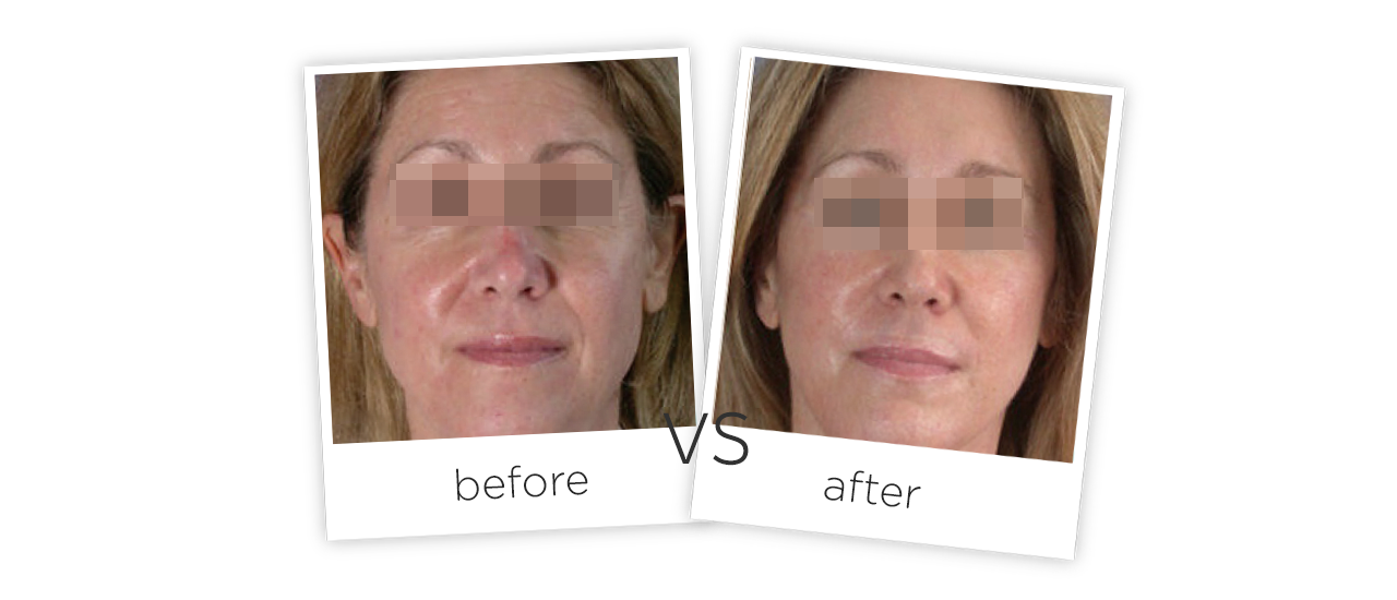 Treatment  /  Spider Veins Removal Treatment Before&After