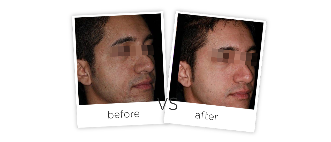 Treatment  /  Acne Scars Treatment Before&After