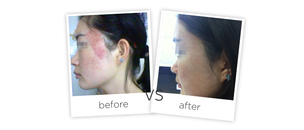 Treatment  /  Acne Scars Treatment Treatment Before&After