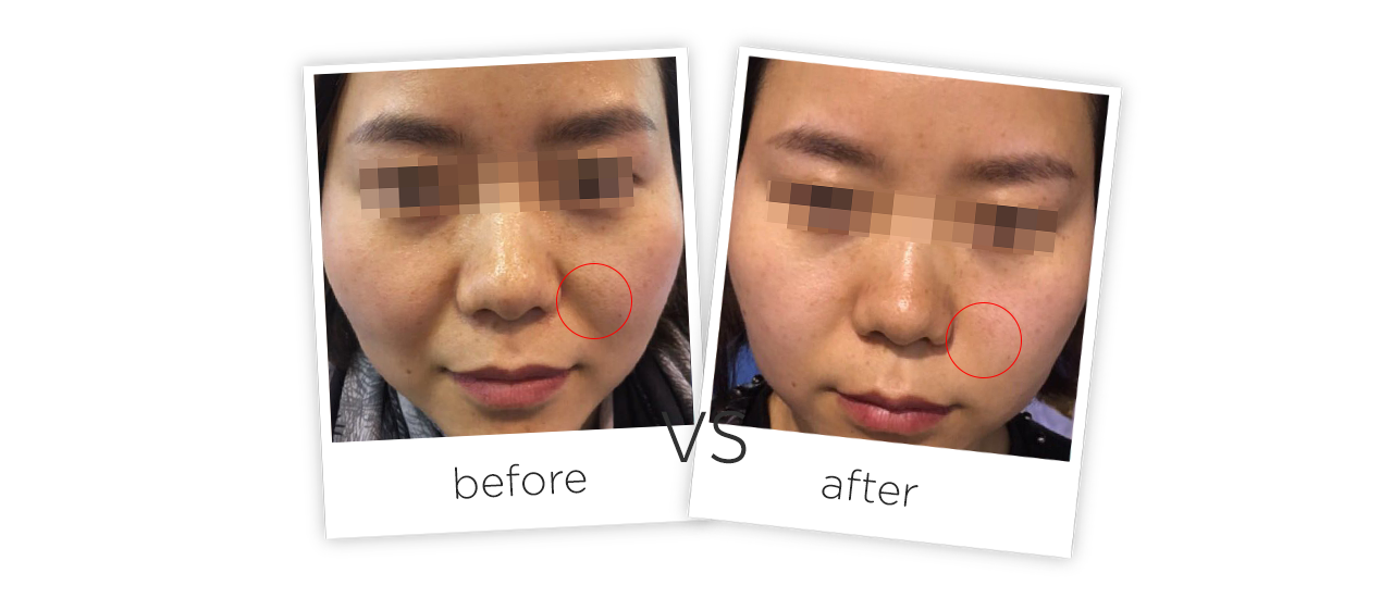 Household Facial Hifu Wrinkle Removal Machine Before&After