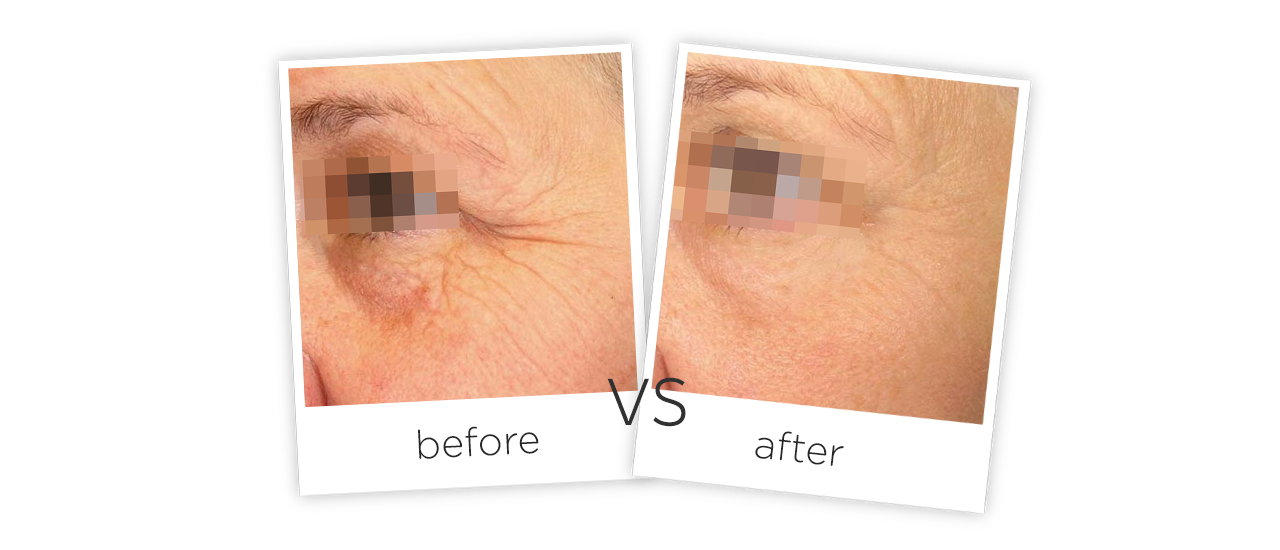 Household 3d Hifu Machine Treatment Before&After