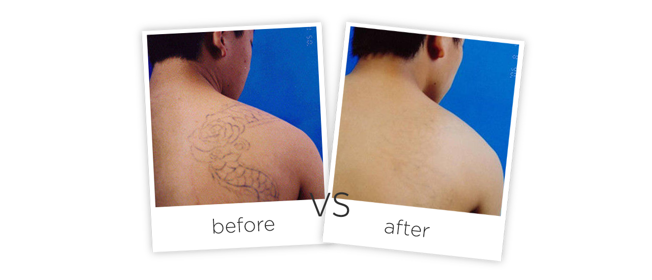 Q-Switched ND YAG Laser-FG2014 Treatment results