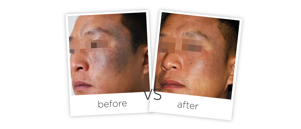 Q-Switched ND YAG Laser-FG2014 Treatment Before&After