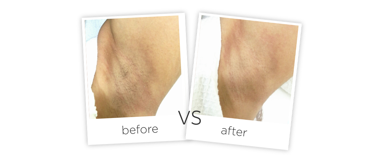 Fiber Laser Hair Removal Before&After
