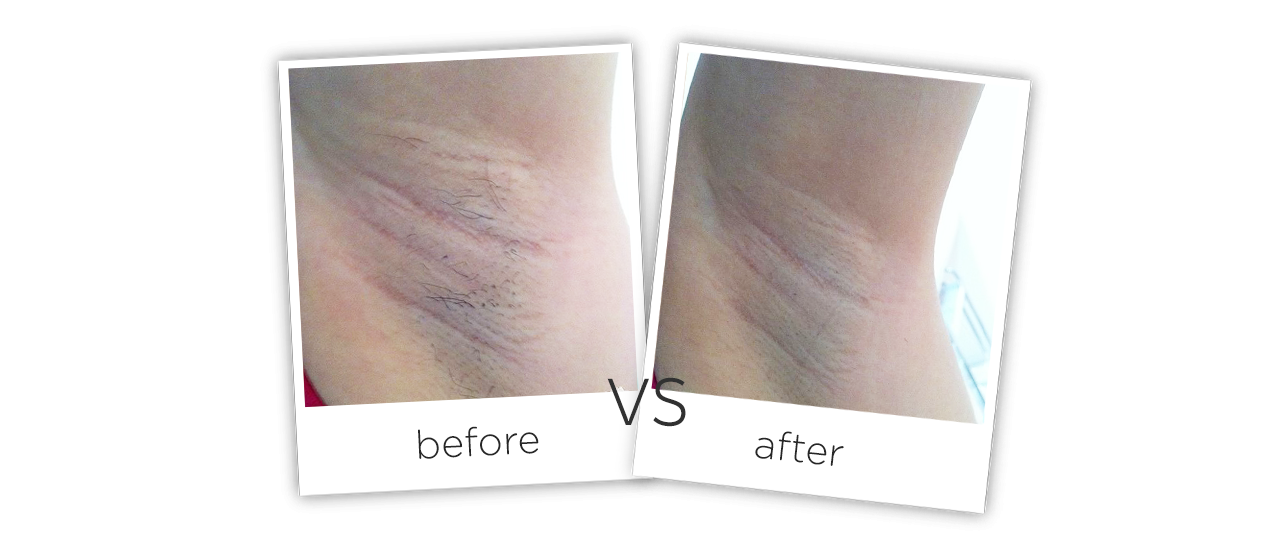 Fiber Laser Hair Removal Treatment results
